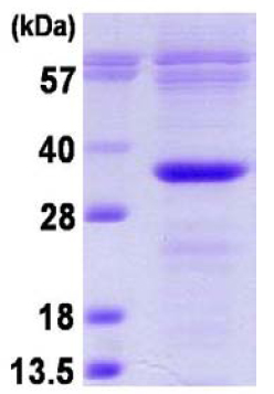 SDS-PAGE - Bcl10 protein (His tag) (ab124575)