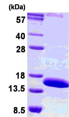 SDS-PAGE - LAIR2 protein (His tag) (ab124577)