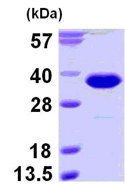 SDS-PAGE - RanBP1 protein (His tag) (ab124580)