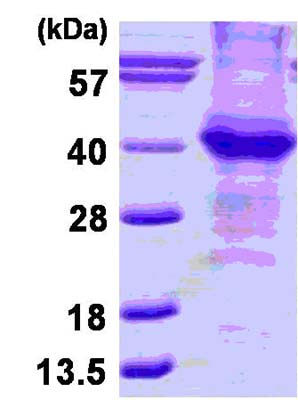 SDS-PAGE - beta Amyloid protein (His tag) (ab124588)