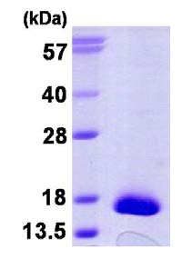 SDS-PAGE - TXNDC17 protein (His tag) (ab124598)