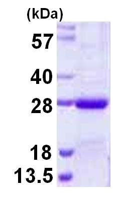 SDS-PAGE - NKIRAS2 protein (His tag) (ab124599)