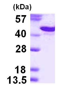 SDS-PAGE - Syndecan protein (His tag) (ab124600)