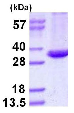 SDS-PAGE - Mycobacterium tuberculosis Ag85 protein (ab124604)