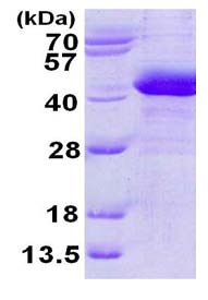 SDS-PAGE - ZADH1 protein (His tag) (ab124605)