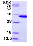 SDS-PAGE - CHMP6 protein (His tag) (ab124606)