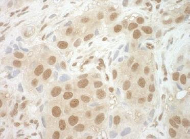 Immunohistochemistry (Formalin/PFA-fixed paraffin-embedded sections) - Anti-NCBP2 antibody (ab124632)