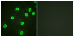 Immunocytochemistry/ Immunofluorescence - Anti-Histone H4 (acetyl K5) antibody (ab124636)