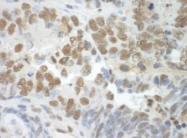 Immunohistochemistry (Formalin/PFA-fixed paraffin-embedded sections) - Anti-SF3A3 antibody (ab124638)