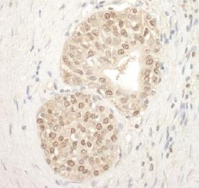 Immunohistochemistry (Formalin/PFA-fixed paraffin-embedded sections) - Anti-ADRM1 antibody (ab124645)
