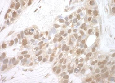 Immunohistochemistry (Formalin/PFA-fixed paraffin-embedded sections) - Anti-HSPC142 antibody (ab124647)
