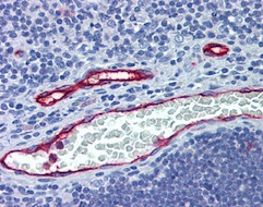 Immunohistochemistry (Formalin/PFA-fixed paraffin-embedded sections) - Anti-DARC antibody (ab124648)