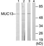 Western blot - Anti-MUC13 antibody (ab124654)