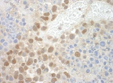 Immunohistochemistry (Formalin/PFA-fixed paraffin-embedded sections) - Anti-POGZ antibody (ab124659)