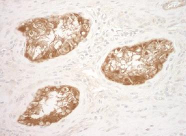 Immunohistochemistry (Formalin/PFA-fixed paraffin-embedded sections) - Anti-Vinculin antibody (ab124660)