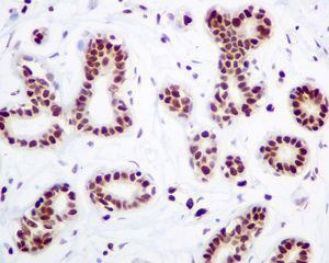 Immunohistochemistry (Formalin/PFA-fixed paraffin-embedded sections) - Anti-HMGB2 antibody [EPR6301] (ab124670)