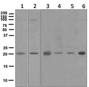 Western blot - Anti-DCTN3 antibody [EPR5097] (ab124674)