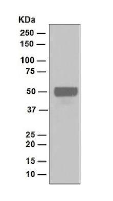 Western blot - Anti-DP1 antibody [EPR4959(2)] (ab124678)