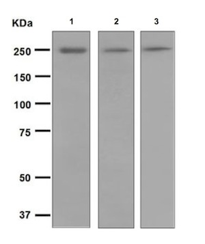 Western blot - Anti-Myosin, smooth muscle heavy chain 1 and 2 antibody [EPR5335] (ab124679)