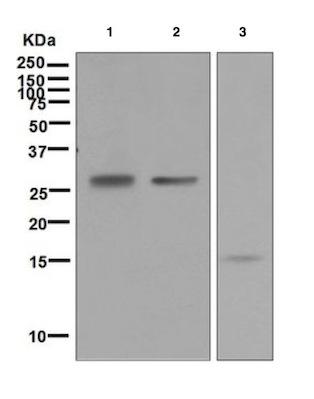 Western blot - Anti-Frataxin antibody [EPR6107] (ab124680)