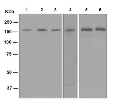 Western blot - Anti-Desmoglein 2 antibody [EPR6767(B)] (ab124683)