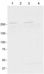 Western blot - Anti-Dysferlin antibody [JAI-1-49-3] (ab124684)