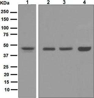 Western blot - Anti-NDRG1 antibody [EPR5593] (ab124689)