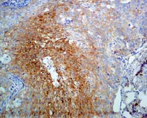 Immunohistochemistry (Formalin/PFA-fixed paraffin-embedded sections)-Anti-NDRG1 antibody [EPR5593](ab124689)