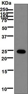 Western blot - Anti-ARL4 antibody [EPR6086] (ab124690)