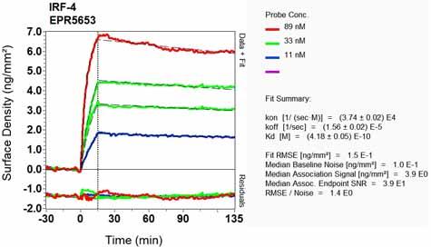Other-Anti-MUM1 antibody [EPR5653](ab124691)