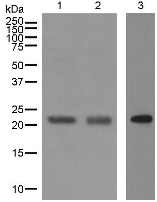 Western blot - Anti-CBFb antibody [EPR6321] (ab124693)