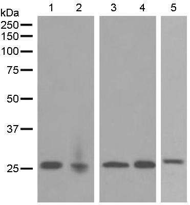 Western blot - Anti-EBI3 antibody [EPR5747] (ab124694)