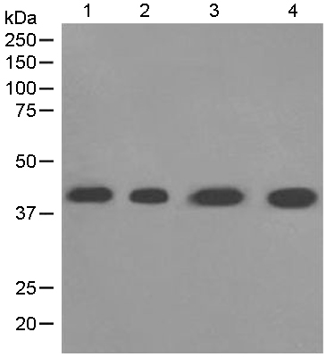 Western blot - Anti-LHX3 antibody [EPR3344(2)] (ab124697)
