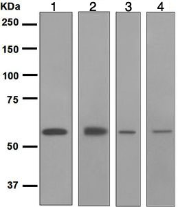 Western blot - Anti-Retinoic Acid Receptor beta antibody [EPR2017] (ab124701)