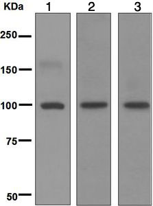 Western blot - Anti-GRIK2 antibody [EPR6307] (ab124702)