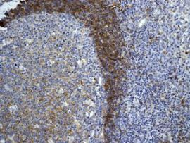 Immunohistochemistry (Formalin/PFA-fixed paraffin-embedded sections) - Anti-CD73 antibody [EPR6115] (ab124725)