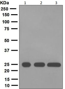 Western blot - Anti-Human IgG Kappa Light Chain antibody [EPR5367] (ab124727)