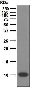 Western blot - Anti-S100P antibody [EPR6142] (ab124743)