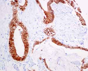 Immunohistochemistry (Formalin/PFA-fixed paraffin-embedded sections) - Anti-S100P antibody [EPR6142] (ab124743)