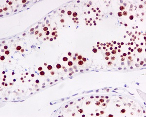 Immunohistochemistry (Formalin/PFA-fixed paraffin-embedded sections) - Anti-RAP80 antibody [EPR5315] (ab124763)
