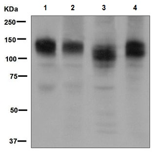 Western blot - Anti-Interferon Receptor alpha antibody [EPR6244] (ab124764)