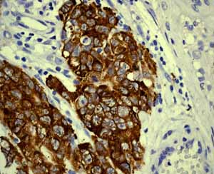 Immunohistochemistry (Formalin/PFA-fixed paraffin-embedded sections)-Anti-Lin28A antibody [EPR4640](ab124765)