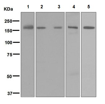 Western blot - Anti-Factor H antibody [EPR6226] (ab124769)