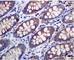 Immunohistochemistry (Formalin/PFA-fixed paraffin-embedded sections) - Anti-eIF3B antibody [EPR5805] (ab124778)