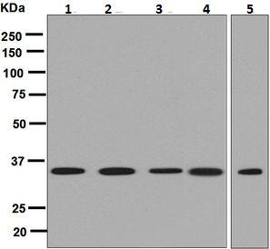 Western blot - Anti-Adenosine A1 Receptor antibody [EPR6179] (ab124780)