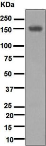 Western blot - Anti-Desmoglein 1 antibody [EPR6766(B)] (ab124798)
