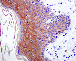 Immunohistochemistry (Formalin/PFA-fixed paraffin-embedded sections) - Anti-Desmoglein 1 antibody [EPR6766(B)] (ab124798)