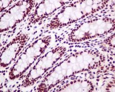 Immunohistochemistry (Formalin/PFA-fixed paraffin-embedded sections) - Anti-SP1 antibody [EPR6662(B)] (ab124804)