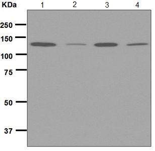 Western blot - Anti-MGEA5 antibody [EPR7154(B)] (ab124807)