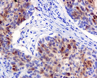 Immunohistochemistry (Formalin/PFA-fixed paraffin-embedded sections) - Anti-Dihydrofolate reductase (DHFR) antibody [EPR5285] (ab124814)
